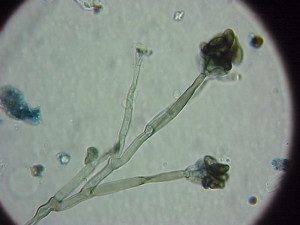 black mold under microscope